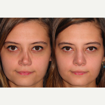 18-24 year old woman treated with Revision Rhinoplasty before 3521315