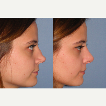 18-24 year old woman treated with Revision Rhinoplasty after 3521315