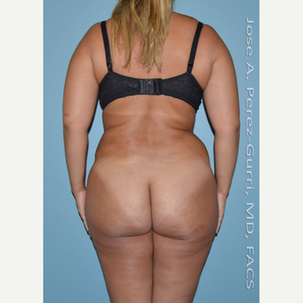 25-34 year old woman treated with Liposuction -Power Assisted Lipoplasty (PAL)-hips/flanks before 3146039