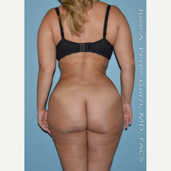 25-34 year old woman treated with Liposuction -Power Assisted Lipoplasty (PAL)-hips/flanks after 3146039