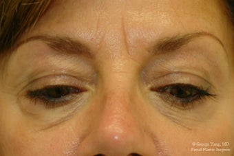 55 year-old woman underwent Restylane injections to blend away eyebags and give a virtual cheeklift.