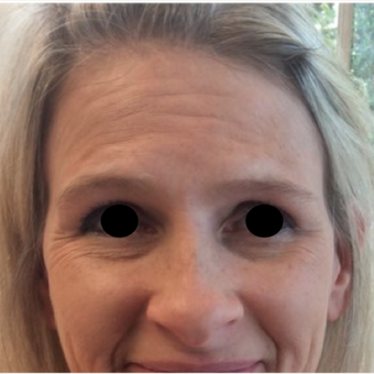 35-44 year old woman treated with Dysport and Restylane Lyft before 2270915