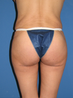 Butt Augmentation after 398807