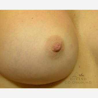 25-34 year old woman treated with Nipple Surgery after 3391910
