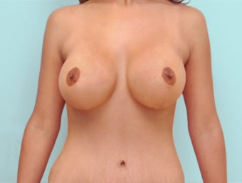 Breast Lift and Breast Augmentation and Mommy Makeover after 1342551