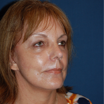 55-64 year old woman treated with Facelift after 3400273