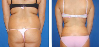 Liposuction Before & After  1110909