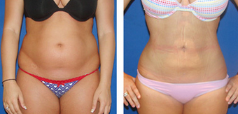 Liposuction Before & After  after 1110909