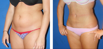 Liposuction Before & After  before 1110909