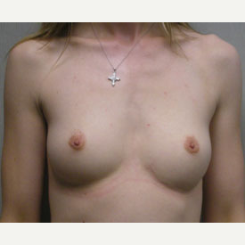 Breast Augmentation before 3681134