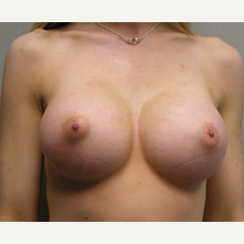Breast Augmentation after 3681134