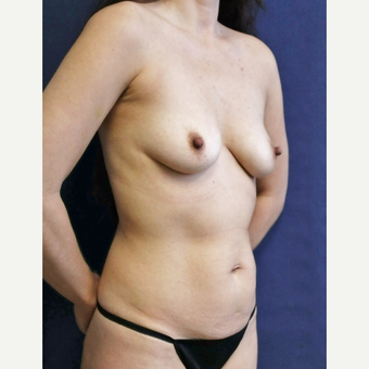 Mommy makeover with Mini Tummy Tuck and Sientra gummy bear breast implants before 3714781