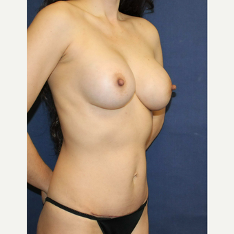 Mommy makeover with Mini Tummy Tuck and Sientra gummy bear breast implants after 3714781