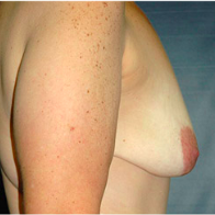 43 year old woman treated with Breast Lift with Implants before 3666107