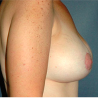 43 year old woman treated with Breast Lift with Implants after 3666107