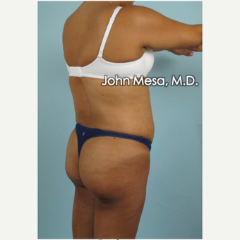 45-54 year old woman treated with Brazilian Butt Lift before 3777652