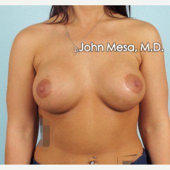 18-24 year old woman treated with Breast Implants after 3266915