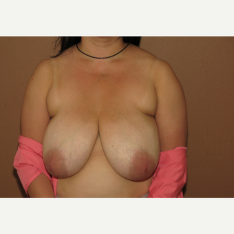 35-44 year old woman treated with Liposuction before 3442973