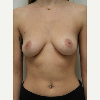 18-24 year old woman treated with Breast Augmentation before 3460965