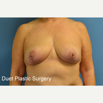 45-54 year old woman treated with Breast Lift after 3350263