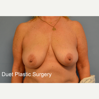 45-54 year old woman treated with Breast Lift before 3350263