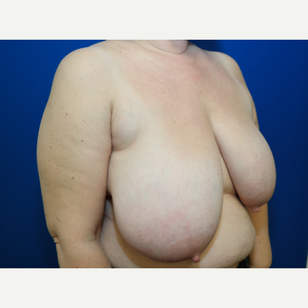 45-54 year old woman treated with Breast Reduction before 3103240