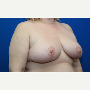 45-54 year old woman treated with Breast Reduction after 3103240