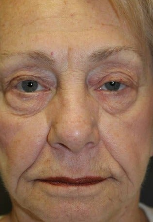 65-74 year old woman treated with Restylane Silk before 3286057