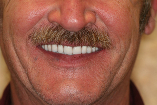 50 year old male treated with All-on-4 Dental Implant Procedure after 1053456