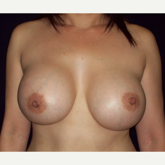 45-54 year old woman treated with Saline  Breast Implants after 3141642
