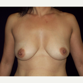 45-54 year old woman treated with Saline  Breast Implants before 3141642