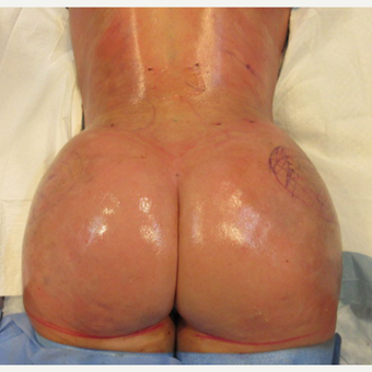35-44 year old woman treated with Brazilian Butt Lift after 3446891