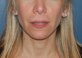 45-54 year old woman treated with Lip Lift before 1640247