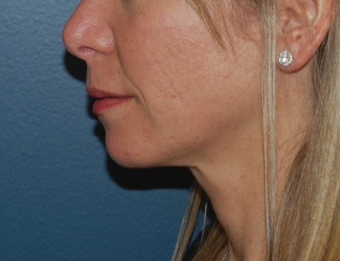 45-54 year old woman treated with Lip Lift 1640247