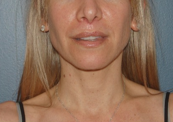 45-54 year old woman treated with Lip Lift after 1640247