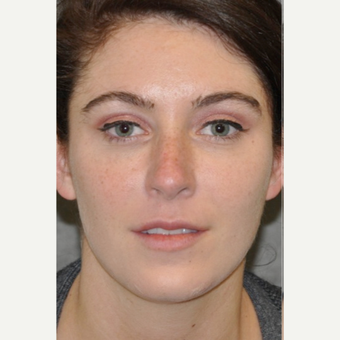 25-34 year old woman treated with Lifestyle Lift
