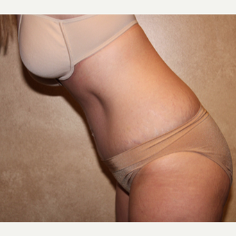 Tummy tuck with liposuction after 3325396