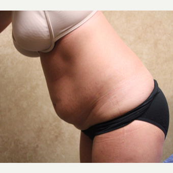 Tummy tuck with liposuction before 3325396