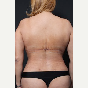35-44 year old woman treated with Bra Line Back Lift