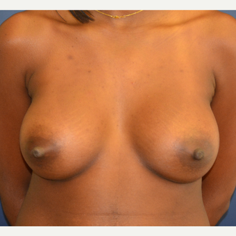 25-34 year old woman treated with Breast Augmentation after 3136681