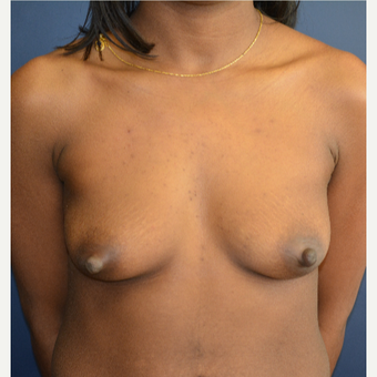 25-34 year old woman treated with Breast Augmentation before 3136681