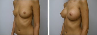 Breast Augmentation before 608767