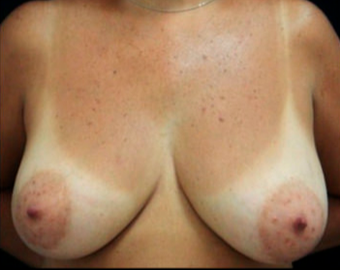 45 year old woman treated with Breast Reduction before 3820976