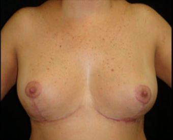 45 year old woman treated with Breast Reduction after 3820976
