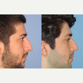 25-34 year old man treated with Rhinoplasty after 3521679