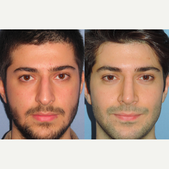 25-34 year old man treated with Rhinoplasty before 3521679