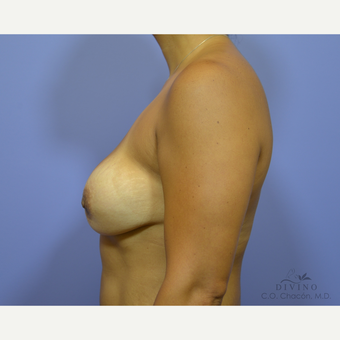 45-54 year old woman treated with Breast Augmentation before 3329307