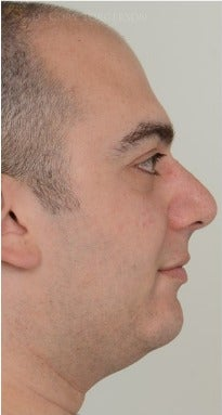 25-34 year old man treated with Rhinoplasty before 3259917