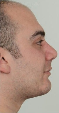 25-34 year old man treated with Rhinoplasty after 3259917