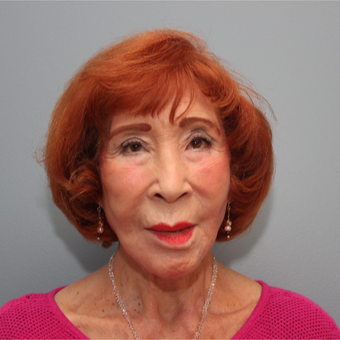83 year old woman treated with a LiteLift® facelift after 3380077